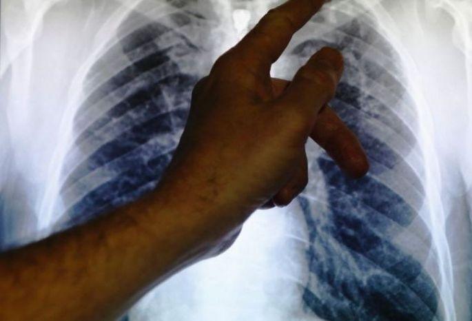 ВОмске госпитализировали студента изКонго соткрытой формой туберкулеза